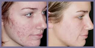 acne before after1